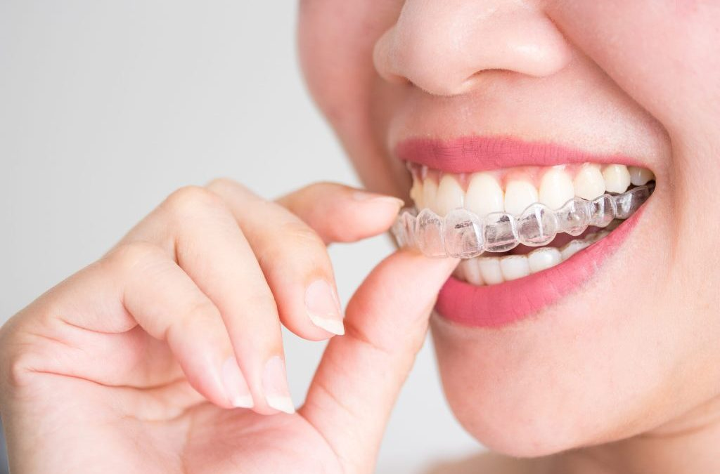 Your Personal Invisalign Journey!
