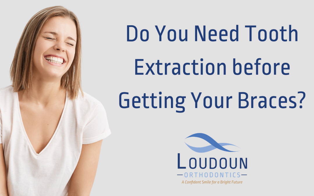 Do You Need Teeth Extracted before Getting Your Braces?