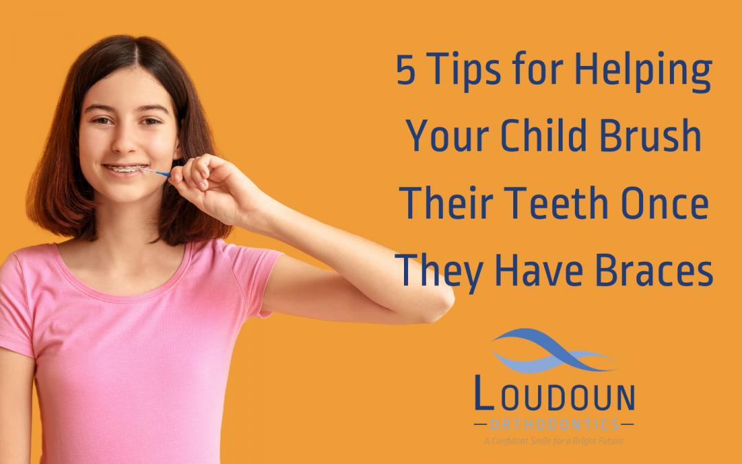 5 Tips for Helping Your Child Brush Their Teeth Once They Have Braces