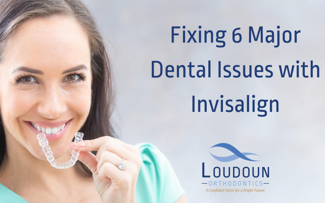 Fixing 6 Major Dental Issues with Invisalign