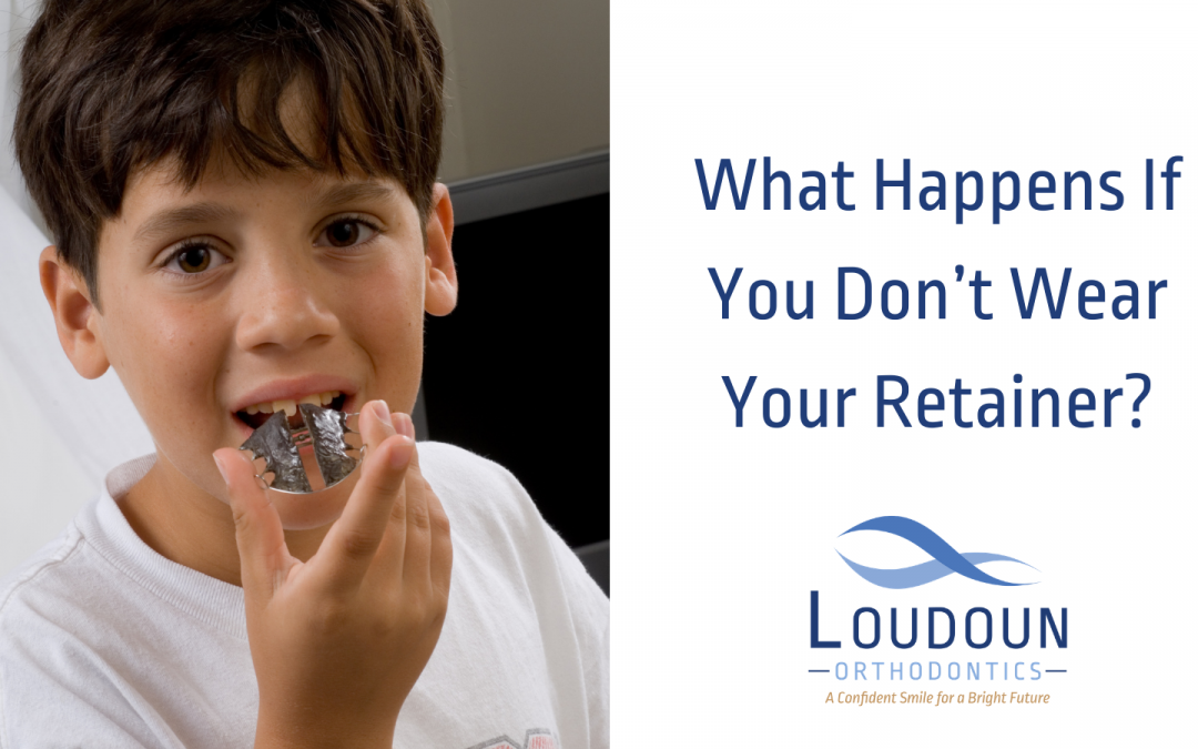 What Happens If You Don't Wear Your Retainer?