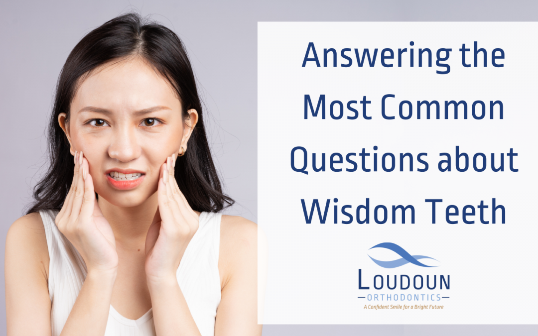 Answering the Most Common Questions about Wisdom Teeth