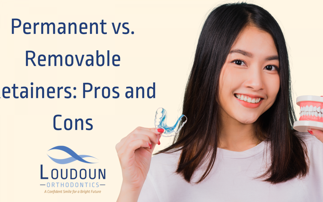 Permanent vs. Removable Retainers Pros and Cons