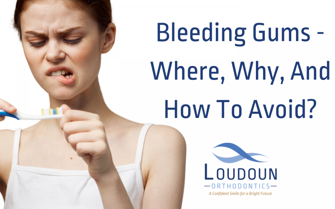 Bleeding Gums – Where, Why, And How To Avoid