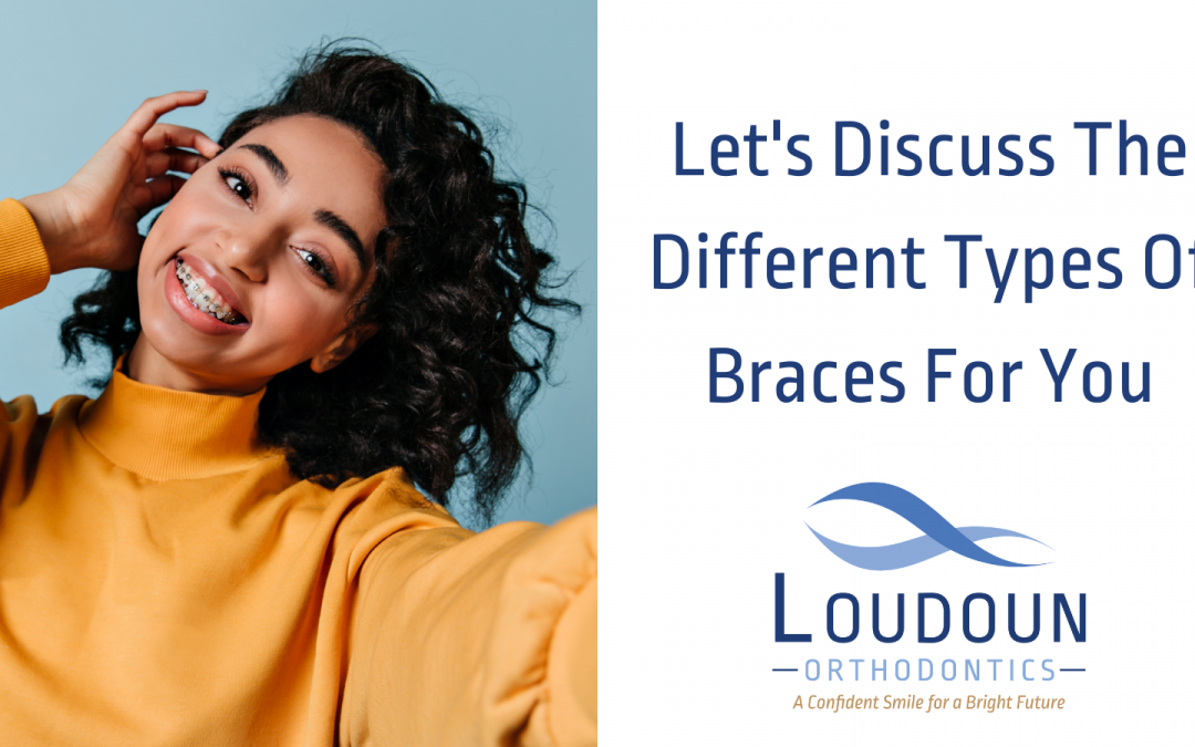 Let's Discuss The Different Types Of Braces For You